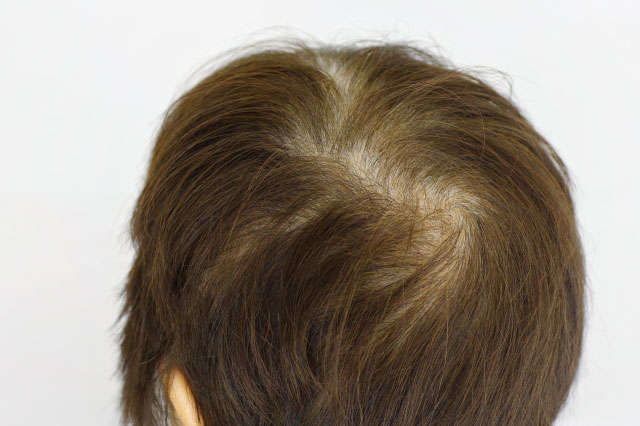 薄毛の人の髪